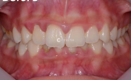 윗니가 아랫니를 많이 덮는 교합. 치아교정 전, 후