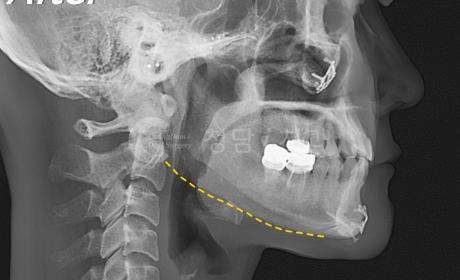 사각턱 안면윤곽 수술 사례